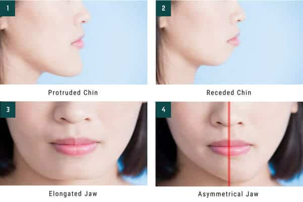 elongated receded chin jaw